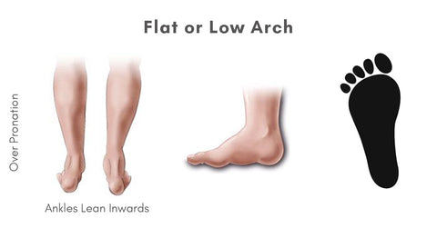 Flat or Low Arch