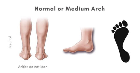Normal or Medium Arch
