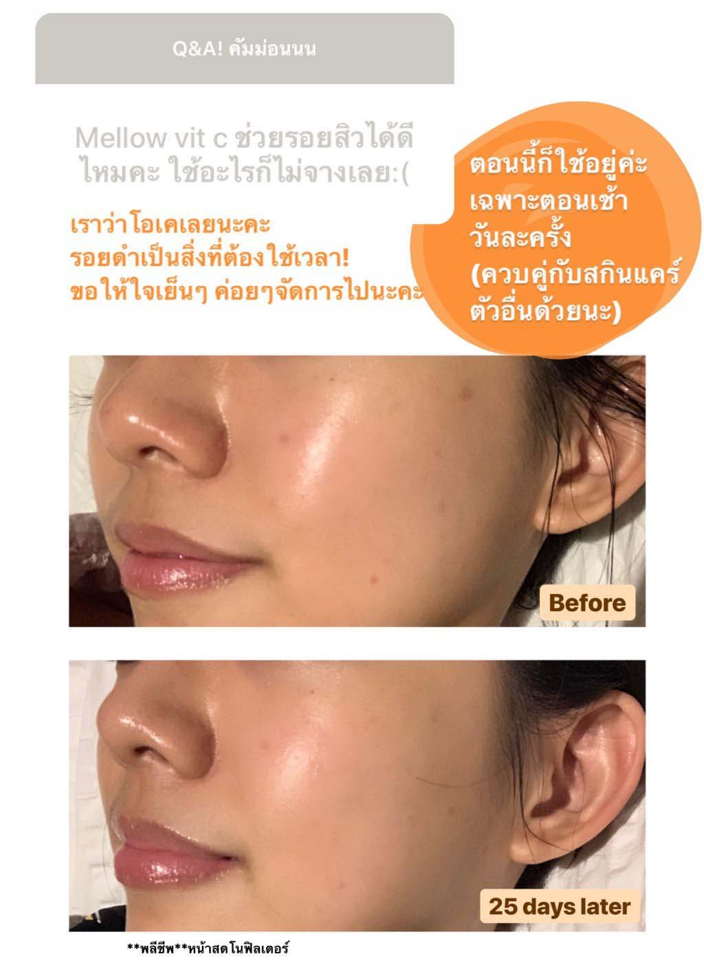 Before after results vit c serum