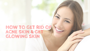 How to get rid of acne skin & get Glowing skin
