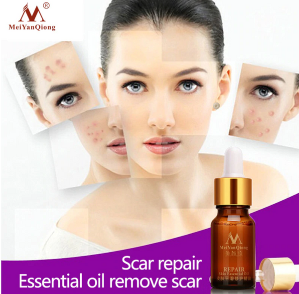 Scar Repair Lavender Oil