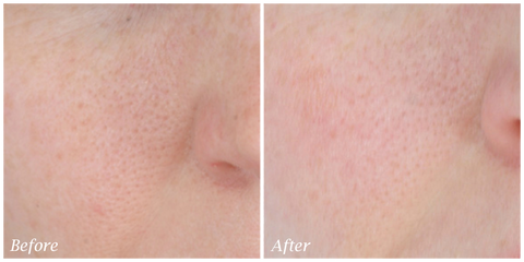 best serum for pores - before and after