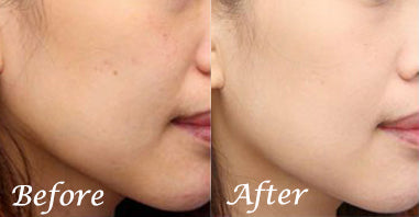 best vitamin c serum - before & after