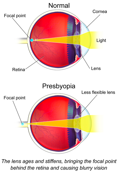 Eye illustration of normal vision vs low diopter strength due to presbyopia