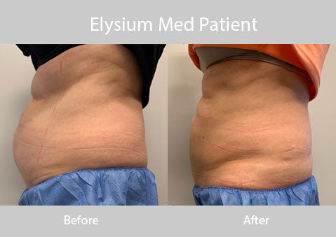 Elysium Med Cool Sculpting Patient