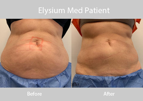 Elysium Med Cool Sculpting Patient 2
