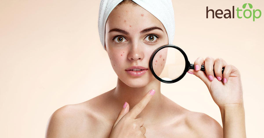 Get Rid of Pimples in Stages