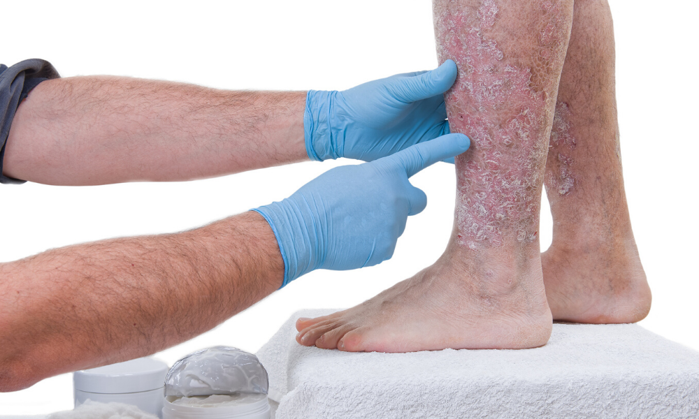 TREATING PSORIASIS: Why 12 Weeks is the Most Important Measure