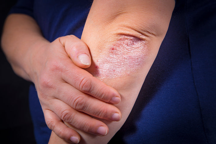 Comorbidities: Is Psoriasis Linked to Other Health Conditions?