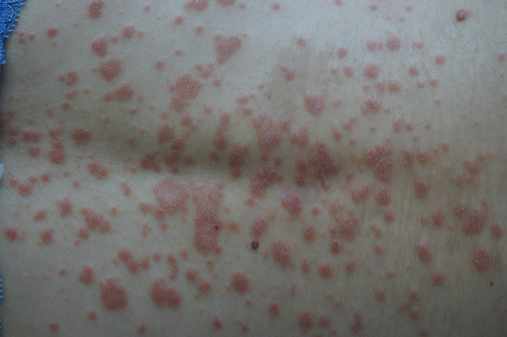 What Causes Guttate Psoriasis?