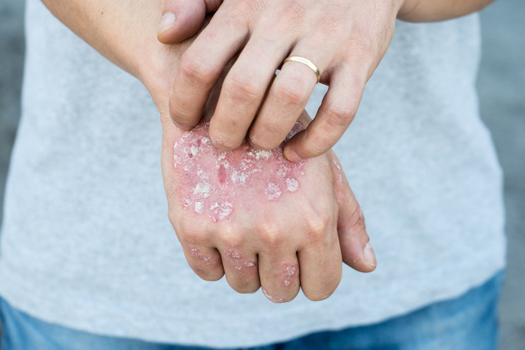 5 Most Common Psoriasis Triggers