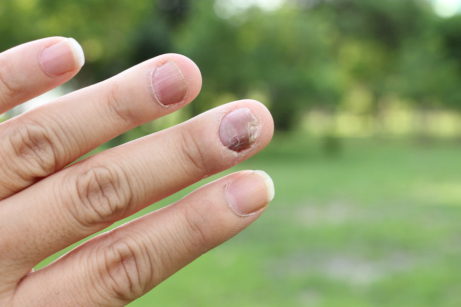 What Causes Nail Psoriasis?