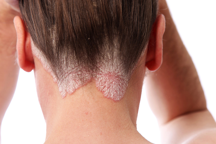 What Does Scalp Psoriasis Look Like?
