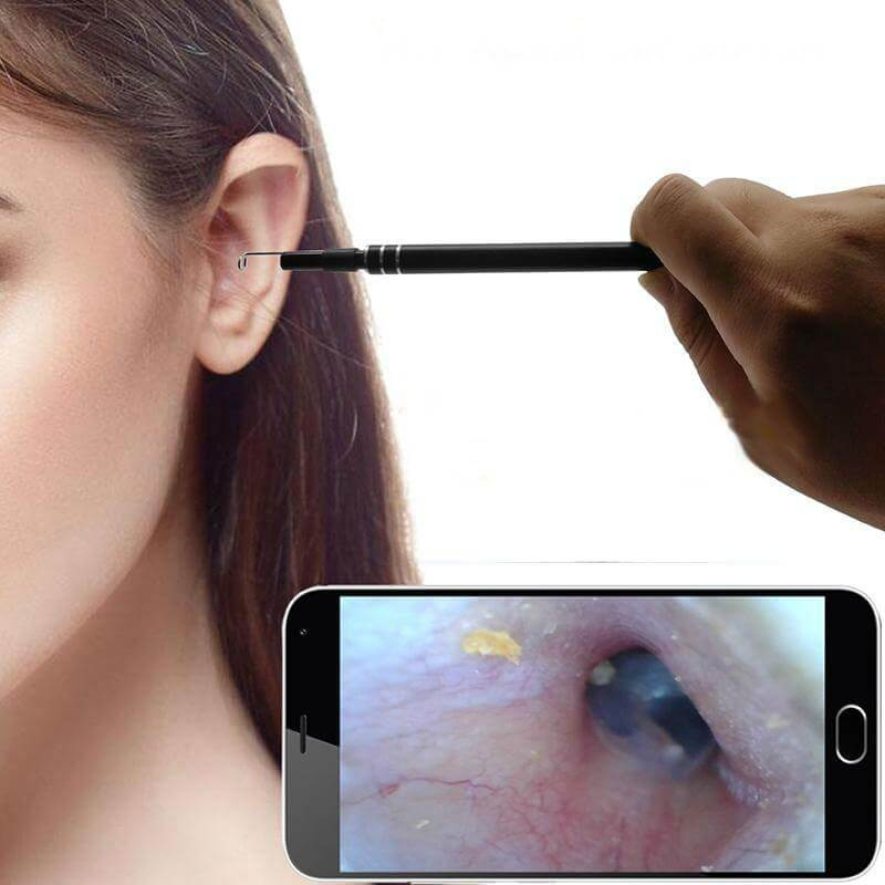 Endoscope Ear Cleaner - 35% OFF Today Only!