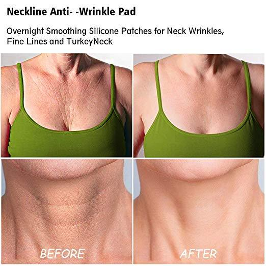 Silicone Care Neck Pad With Wrinkle Chest Pad to Prevent and Diminish Wrinkles - Innolv