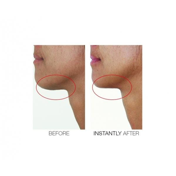 CHIN TUCK V SHAPE LIFTING SERUM + FREE MINI