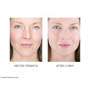 ULTIMATE AGE RENEW + REFRESH  5 PCE SKIN MIRACLES