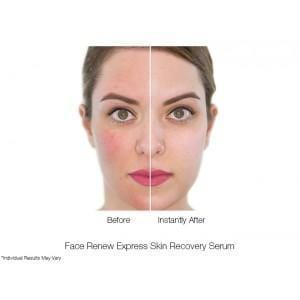 FACE RENEW EXPRESS SKIN RECOVERY SERUM