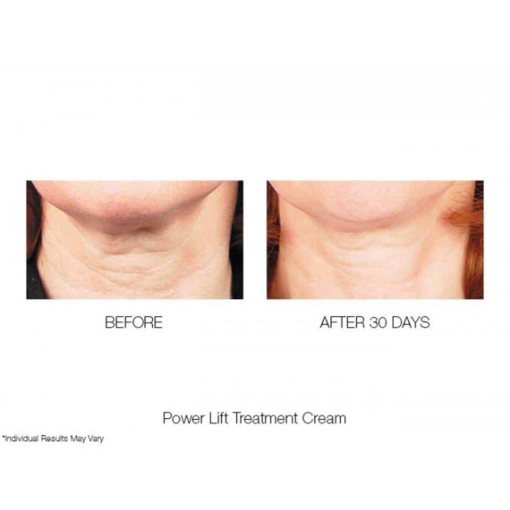 POWER LIFT TREATMENT CREAM MOISTURISER