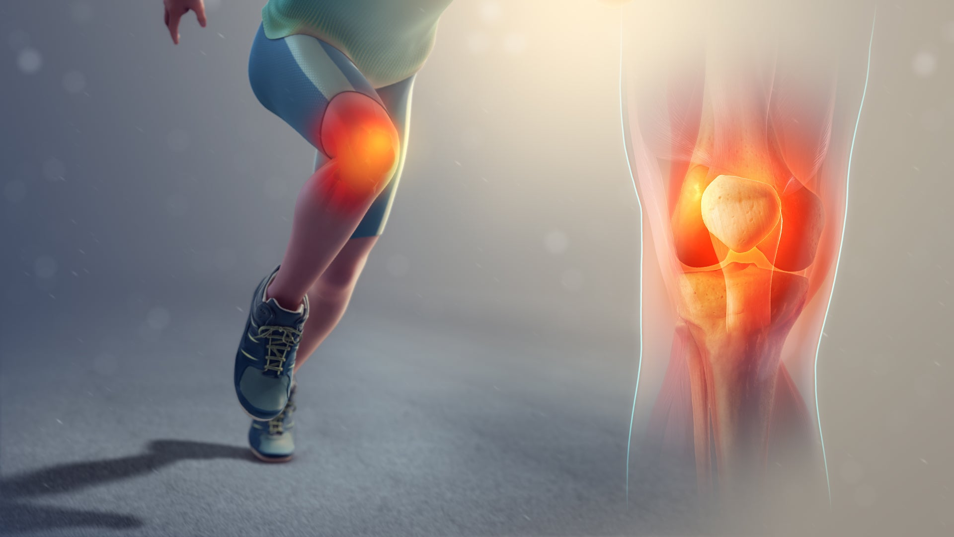 3 Things You Must Know About Runner's Knee