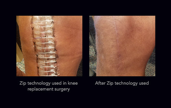 ZipStitch - Before & After