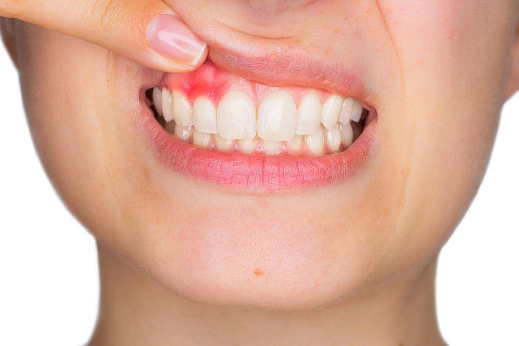 COLLOIDAL SILVER FOR GUMS AND TEETH HEALTH