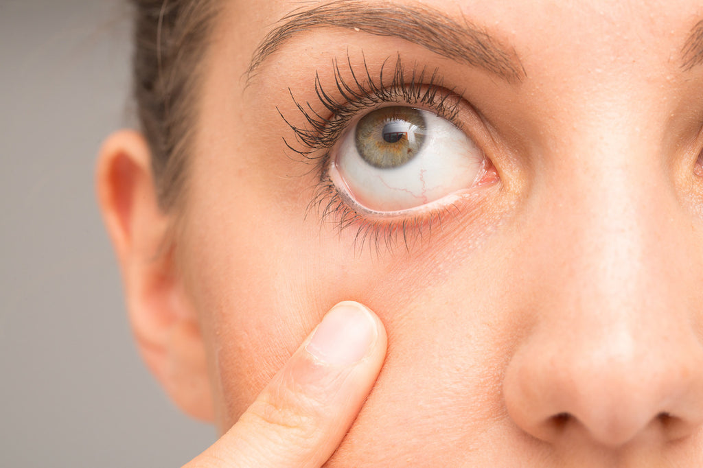 COLLOIDAL SILVER FOR EYE INFECTIONS
