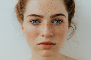 Top 4 Tips to Treat Dry Skin Naturally