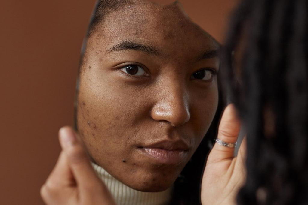 My Five-Year Ongoing Struggle With Hormonal Acne