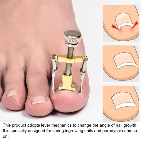 Ingrown Toenails Pedicure Nail Correction