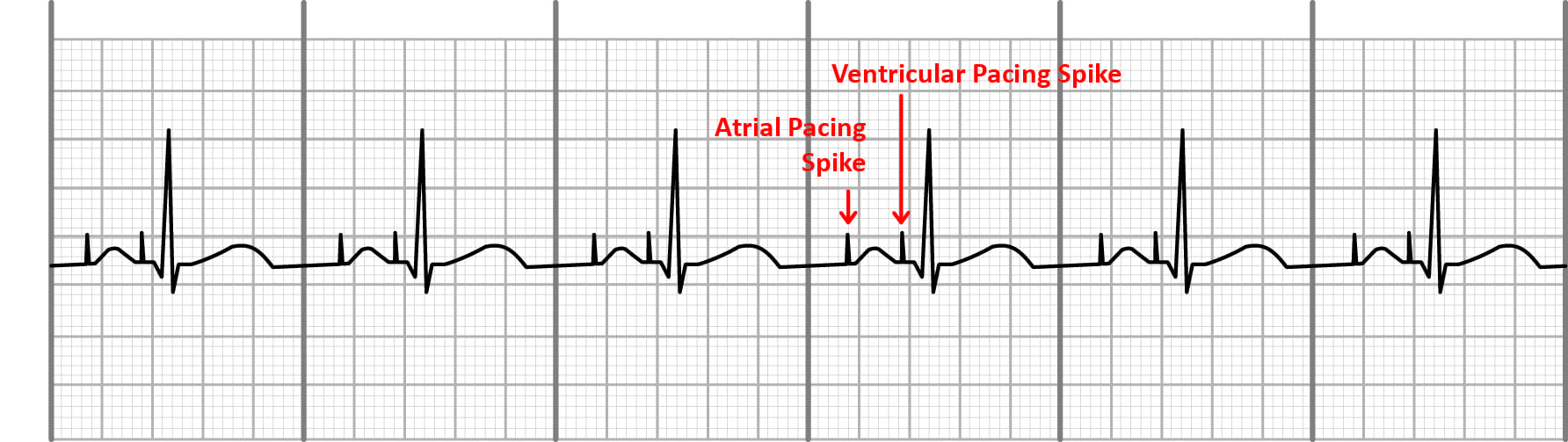 Atrial and ventricular pacing on an EKG