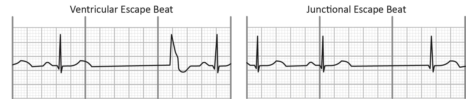 Ventricular and junctional escape beats on EKG