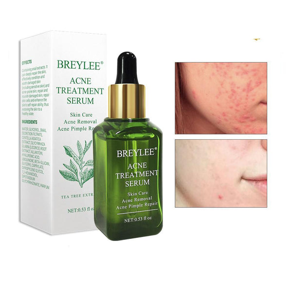 Camellia Sinensis Leaf Extract Anti Acne Serum