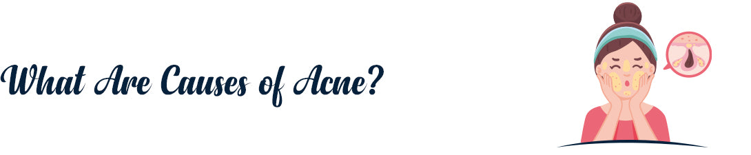 What Are Causes of Acne?