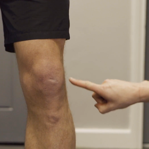 Runners Knee - Physio in the Park Tips