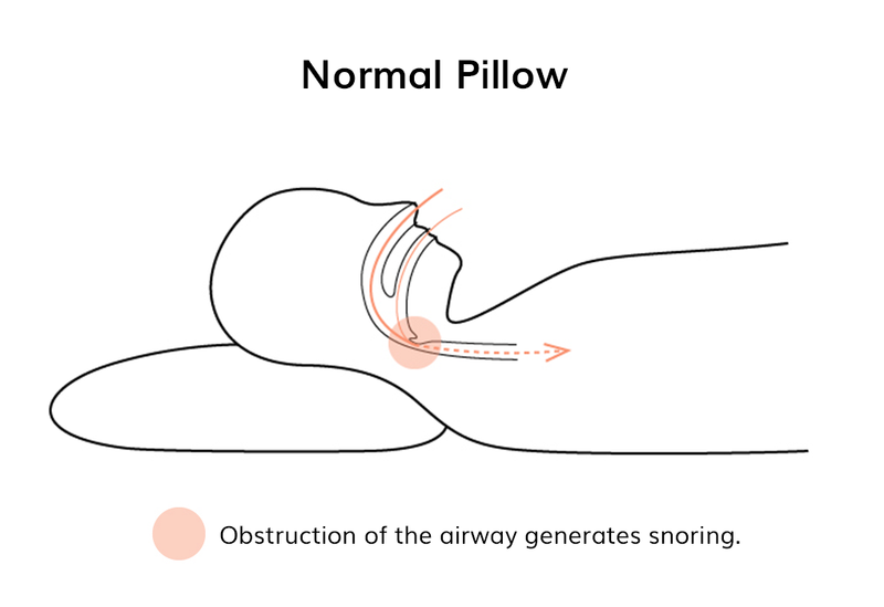 Diagram of back sleeper on normal pillow cutting off their airway