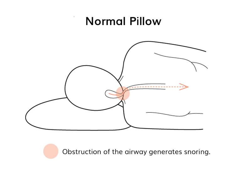 Diagram of side sleeper on normal pillow cutting off their airway