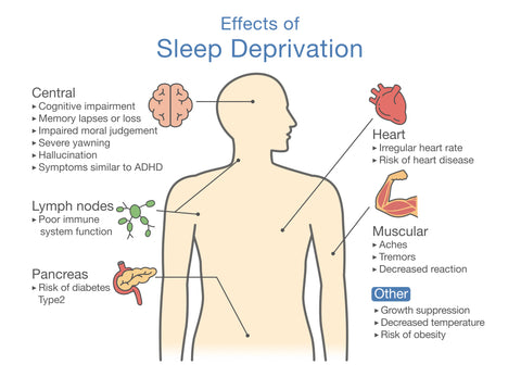 A diagram demonstrating the effects of sleep deprivation.