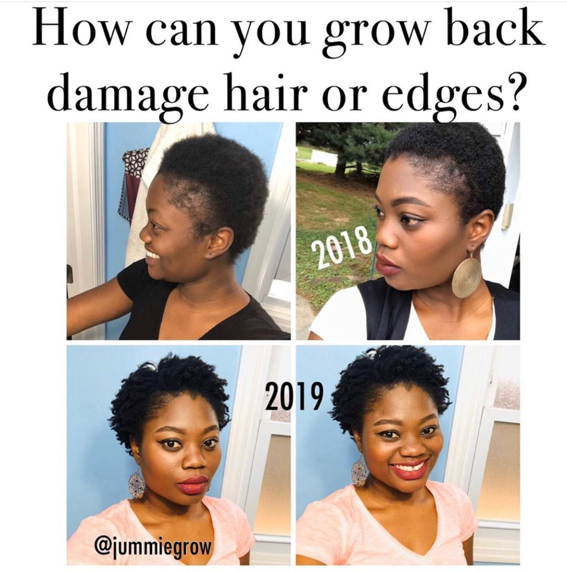 How GlammedNaturallyOil CEO JUMMIE grew back her edges