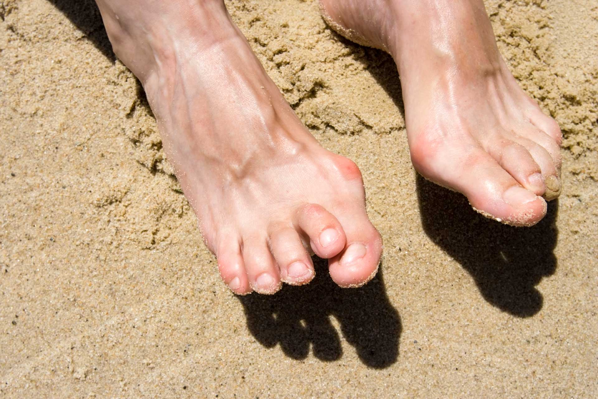 Wearing Flip Flops May Lead to Hammer Toes