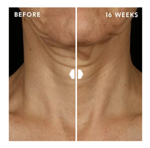 Tripeptide-R Neck Repair