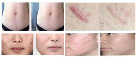 Image result for scar removal