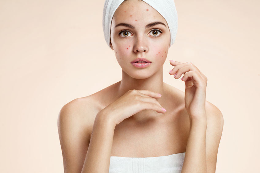 5 Effective Ways To Get Rid Of Acne Quickly