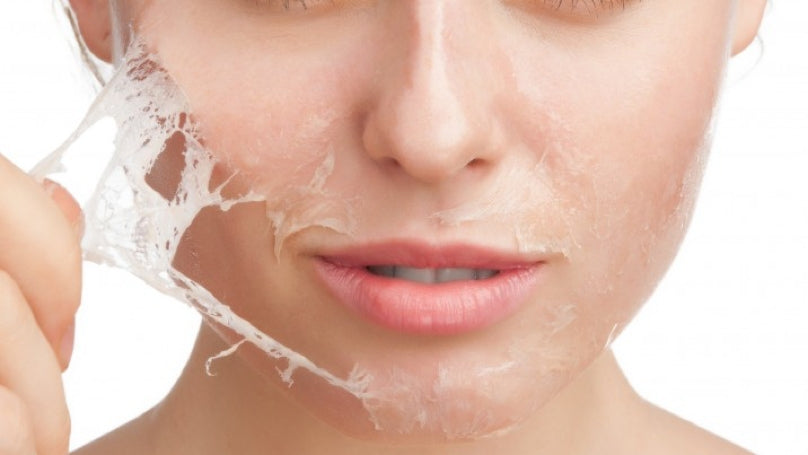 The Complete Guide To At-Home Chemical Peels