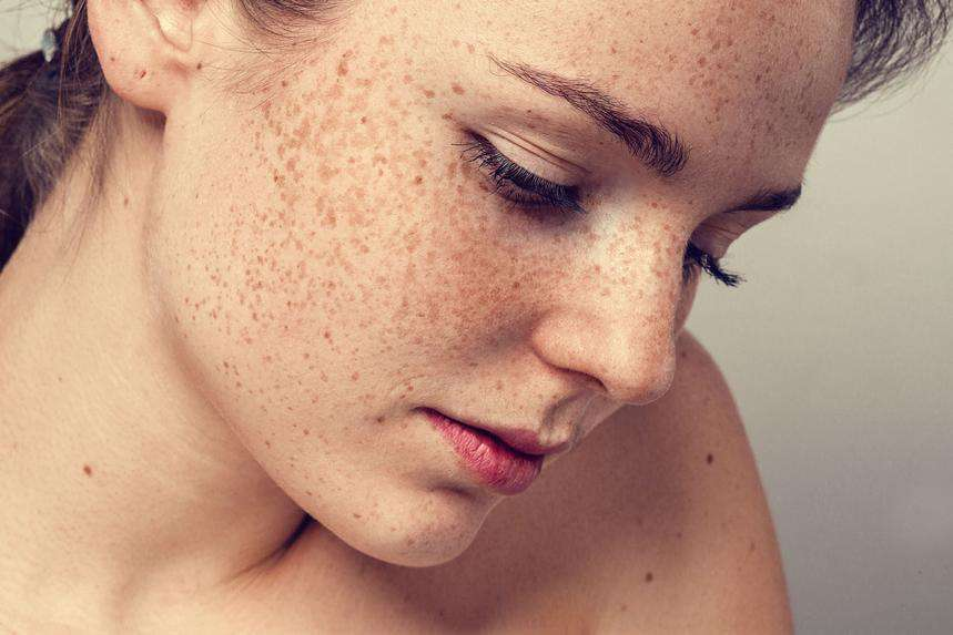 5 Ways To Fight Sun Spots And Hyperpigmentation