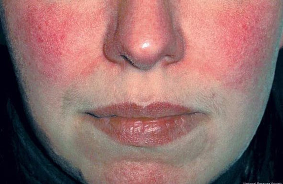 Rosacea: How To Cope