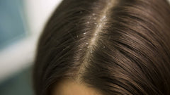 3 Easy Ways To Treat Dandruff Once And For All