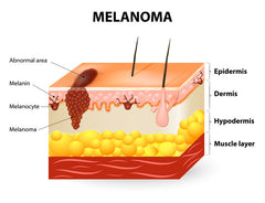How To Spot The Early Signs Of Melanoma Skin Cancer