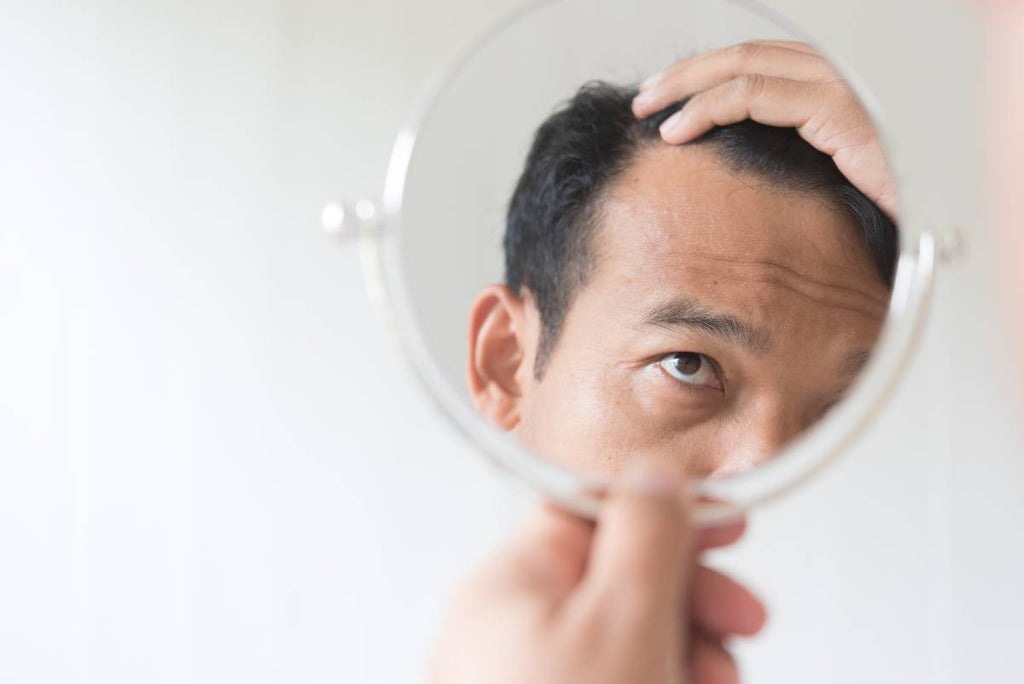 Some Common Causes of Excessive Hair Loss in Men