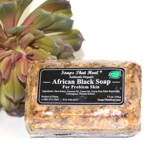 Real African Black Soap - Lavish & Lovely
